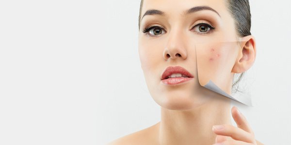 8 Ways to Remove Dark Patches From Nose and Cheeks