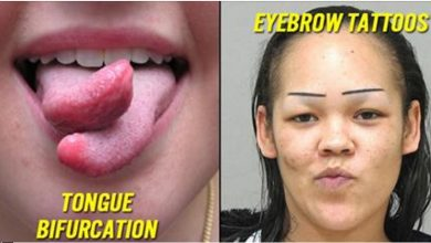 Photo of 12 Weird Cosmetic Surgeries You Didn't Think Were Possible