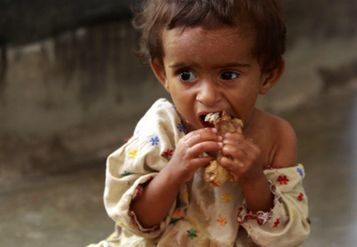 In this Sept. 13, 2010 photo, a Pakistani girl bites on a piece of chicken at the Railway Hospital in Sukkur, Sindh province, southern Pakistan. Medical experts warn the real catastrophe is moving much slower than the floodwaters. Children already sick or weak in poor rural areas prior to the floods are now fighting to stay alive as diarrhea, respiratory diseases and malaria attack their emaciated bodies. (AP Photo/Aaron Favila)