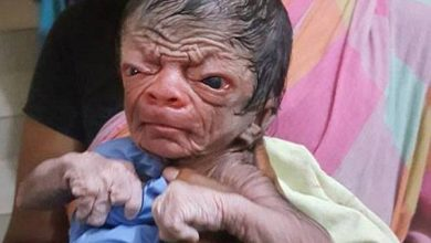 Photo of The newborn who looks like an 80-year-old