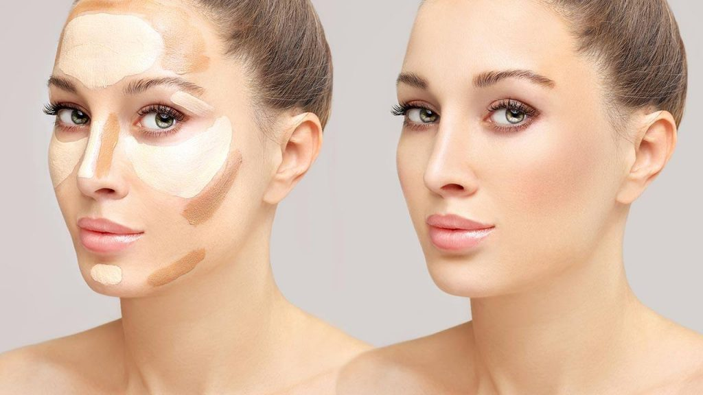 Over contouring
